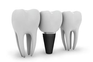 インプラント治療が仮歯の状態で中断する場合は池田歯科に相談を!