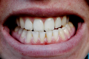 歯ぎしりをしていることを指摘されたら知覚過敏にも注意